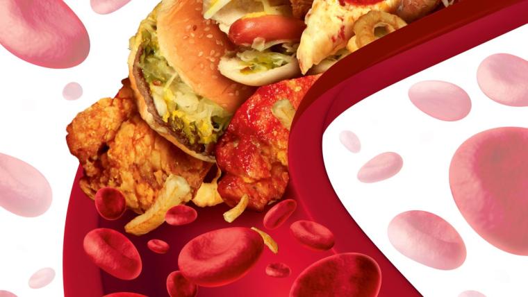 Cholesterol na poziomie: na co i kiedy trzeba uważać?